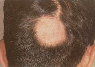 男性白斑病的危害有哪些