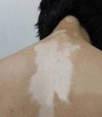 男性白癜风常见症状有哪些