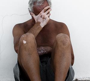 如何诊治老年白癜风患者呢