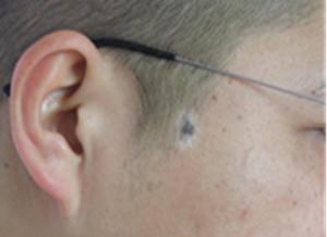 脸部白癜风症状有哪些表现
