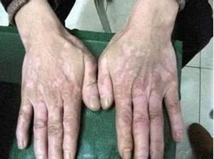 呼和浩特白癜风医院:手部白癜风早期治疗措施