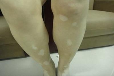 呼和浩特哪家看白癜风好:腿部白癜风的病症特点