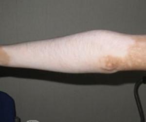 呼和浩特哪家看白癜风好:如何护理手臂上的白癜风